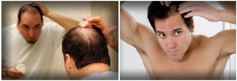 С потерей волос нелегко смириться.