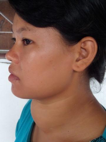 Видимые изменения шеи при эндемическом зобе.