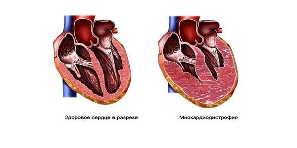 Миокардиодистрофия является одним из самых распространенных последствий тиреотоксикоза