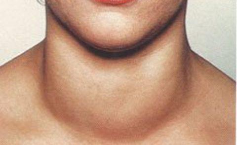 Если щитовидная увеличена это является абсолютным показанием для посещения эндокринолога