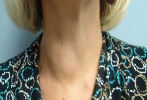 Коллоидные узлы щитовидной железы – лечение подбирают, основываясь на возрасте пациента, общем состоянии здоровья, выраженности заболевания