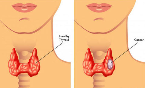 Нормальная щитовидная железа и орган со злокачественным образованием
