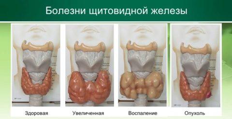 Нормальное и патологические состояния органа
