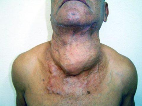 Рак щитовидной железы на поздней стадии