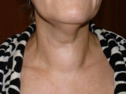 Узлы щитовидной железы: гормоны в норме или зоб с эутиреозом