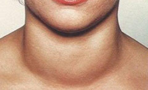 Когда болит щитовидная железа, симптомы продолжают присоединяться, например, припухлость при воспалении