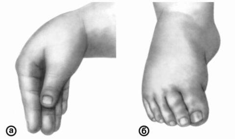 А) Тетания мышц рук, б) тетания мышц ног