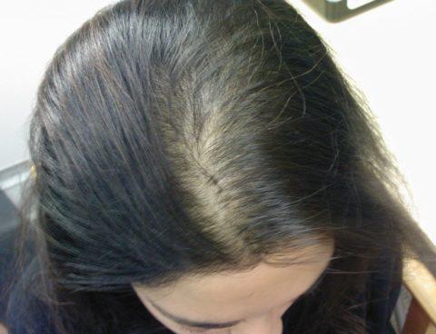 Диффузное выпадение волос может привести к потере 70% луковиц.