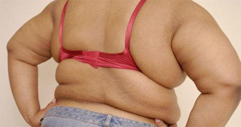 Лишний вес как симптом проблем с эндокринной системой.