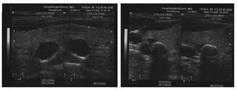 Увеличение размеров паращитовидных желез при вторичном гиперпаратиреозе
