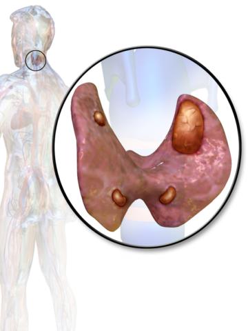 Аденома паращитовидной железы, — одна из причин третичного гиперпаратиреоза