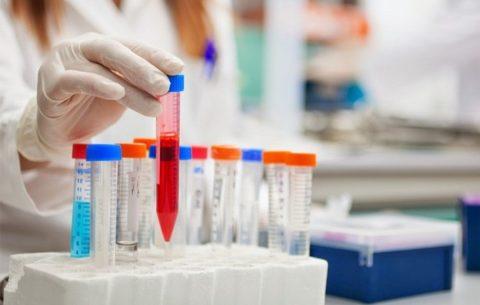 Анализ на гормоны обязателен для всех беременных