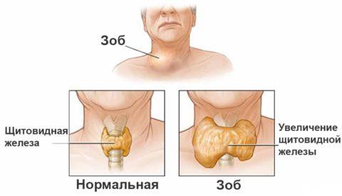 Часто гипотиреоз сопровождается зобом
