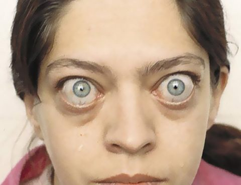Экзофтальм, — характерный симптом автономного токсического узла