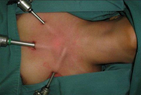 Эндоскопическая методика проведения оперативных вмешательств на щитовидной железе