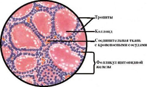 Фолликулы, проходя дистрофические изменения, могут переродится в кисты