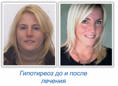 Фото. Гипотиреоз сильно меняет внешность и поведение