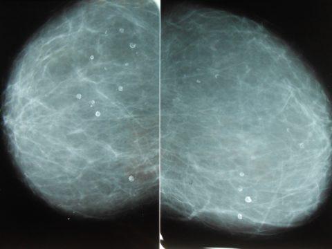 Кальцификаты в почке — один из симптомов запущенной гиперплазии паращитовидной железы