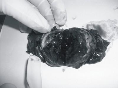 Кистозная трансформация кровоизлияния в щитовидку
