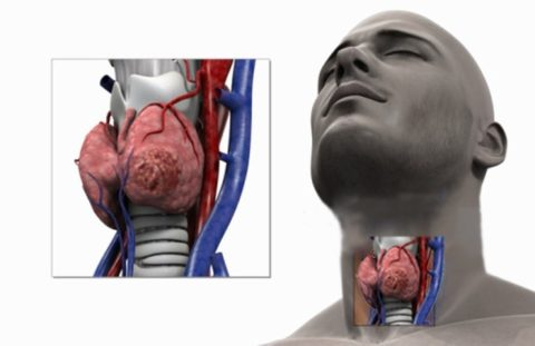 Лечение поражения щитовидки на начальном этапе – залог восстановления.