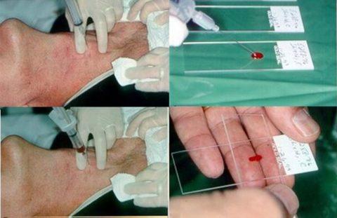 Методика проведения пункционной тонкоигольной биопсии и полученный при этом геморрагический пунктат