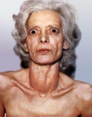 На фото – пациентка с клиническим тиреотоксикозом