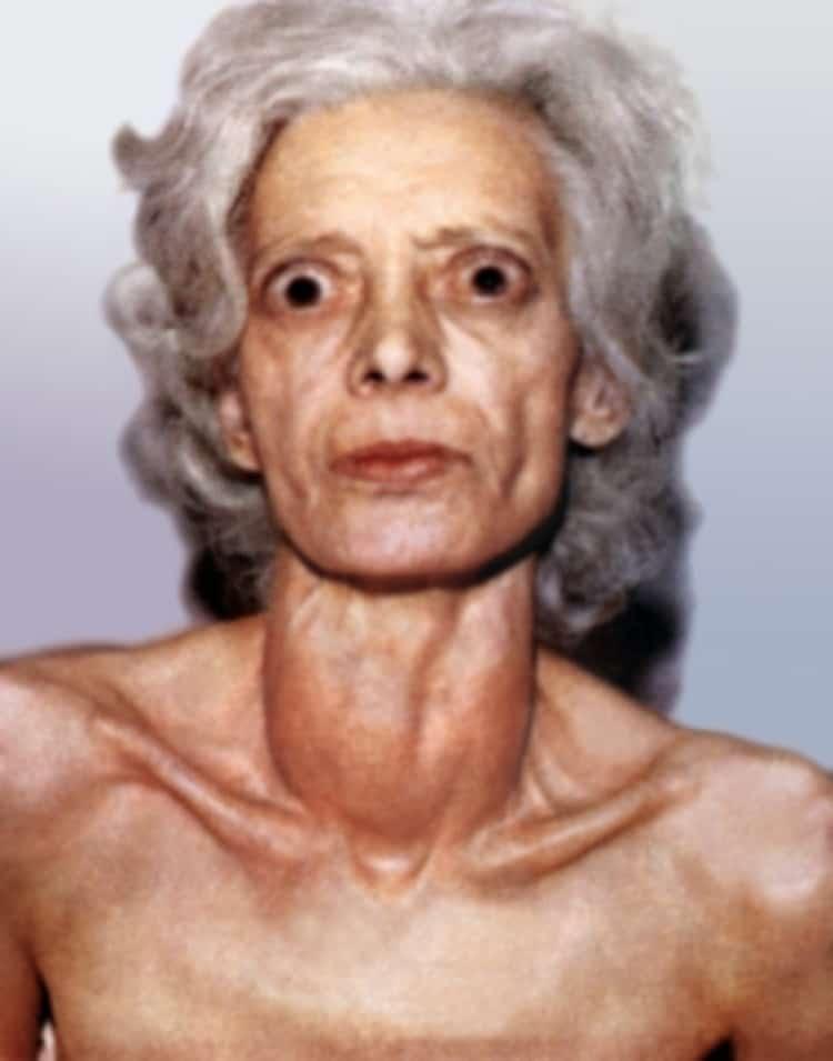 Синдром тиреотоксикоза: причины, диагностика, лечение