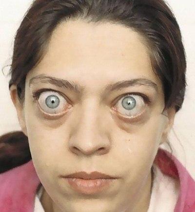 На фото представлен пациент с симптомами токсического зоба.