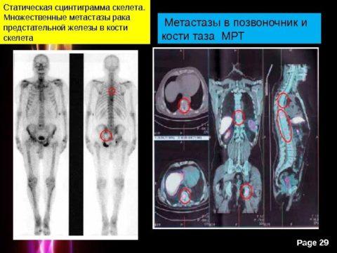 На запущенных стадиях рака метастазы стремительно распространяются по организму, вероятность выздоровления – мала.