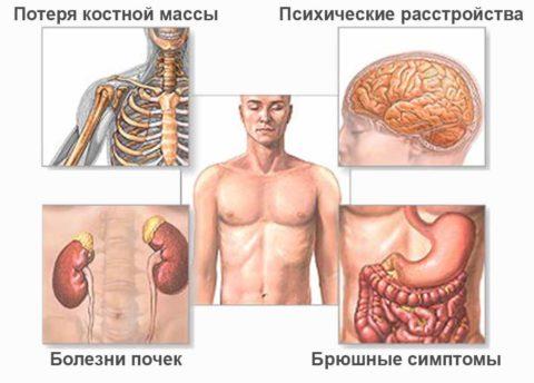 Органы-мишени, страдающие при гиперпаратиреозе