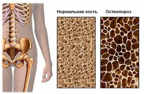 Отличия нормальной костной ткани от пораженной остеопорозом