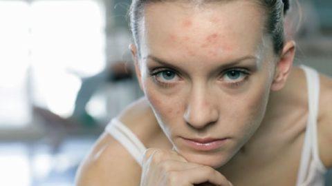 Проблемы с кожей при гипопаратиреозе.