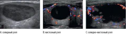 Различные виды узлов щитовидной железы