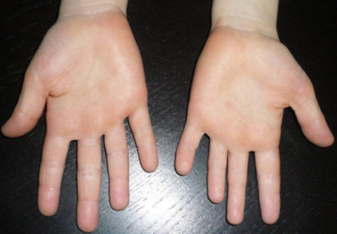 Руки больного псевдогипопаратиреозом