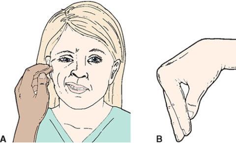 Типичные симптомы гипопаратиреоза: «сардоническая улыбка» (А) и «рука акушера» (В)
