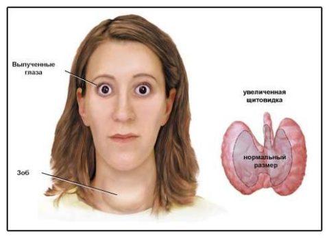 Выпученные глаза и проявление зоба – основные симптомы патологии.
