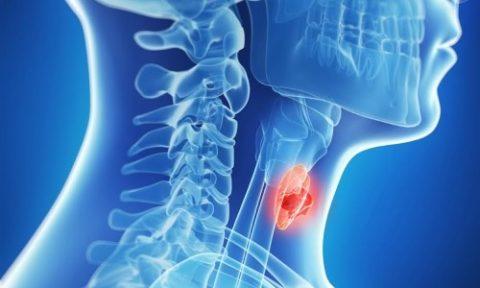 Причины гипотиреоза – врожденная или приобретенная патология
