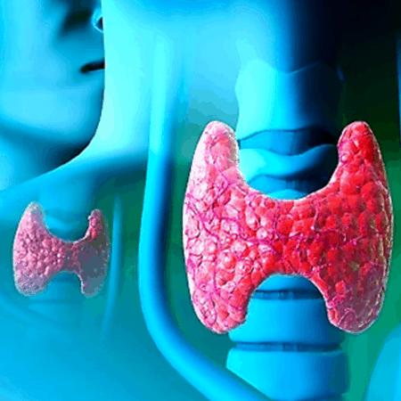 Для лечения заболеваний щитовидки может использоваться радиоактивный йод.