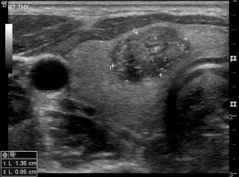 Кальцинат правой доли щитовидной железы, расположенный внутри узла
