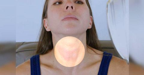 Осмотр щитовидной железы начинается с пальпации.