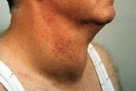 Отечность шеи может выступать симптомом онкологии.