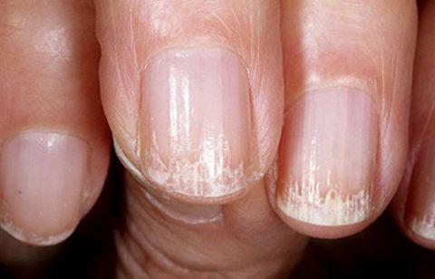 Полосы на ногтях – следствие нарушенного метаболизма