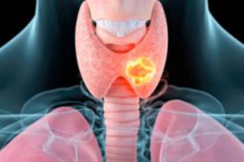 При иммунной атаке клетки ЩЖ разрушаются и перестают продуцировать гормоны