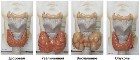 При воспалении ЩЖ слегка увеличена в размерах, отечна, болезненна (см. фото)