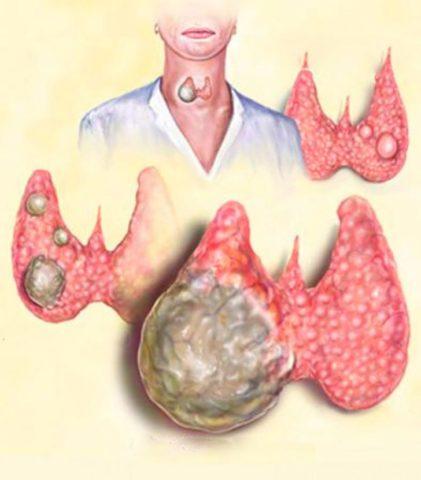Рак вызывает быстрый и бесконтрольный рост узла щитовидки