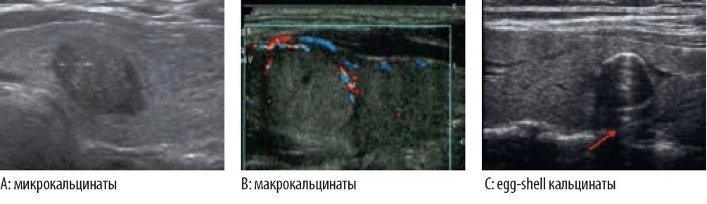Рассмотрим что такое кальцинаты в щитовидной железе | Щитовидка