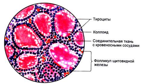 Разрушение ТГ и фолликулов чаще вызывает стойкое нарушение активности органа