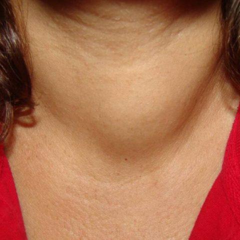 Уплотнение в области шеи как симптом онкологии.