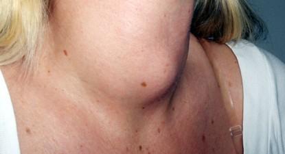 Доброкачественная опухоль щитовидной железы: стратегические подходы к диагностике и лечению