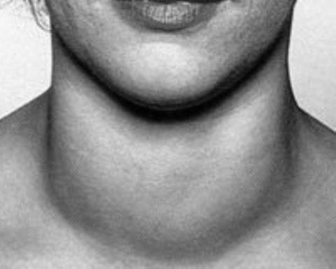 Часто увеличение ЩЖ наблюдается на фоне имеющихся гормональных нарушений